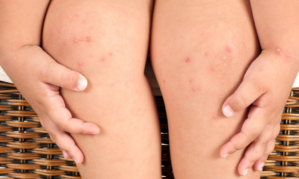 Molluscum Contagiosum: Everything you need to know