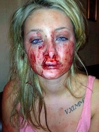 "Chantelle Ward said her boyfriend ""put his whole mouth around my lips and pulled""."