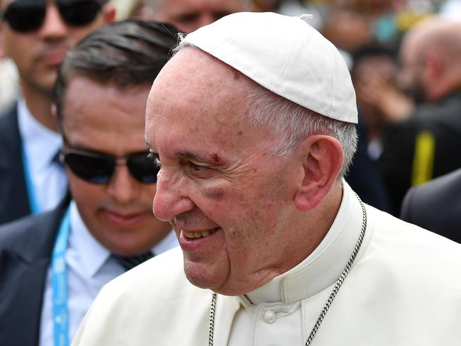 Pope Francis smiles with a bruise on his face after he knocked his head on the popemobile. Picture: Alberto Pizzoli/Pool via AP