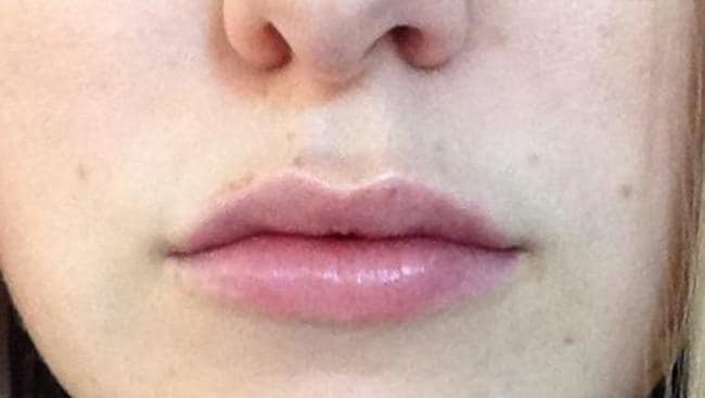 And after the lip procedure. Picture: Supplied