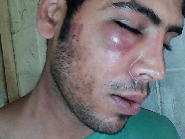 One of the two Iranian refugees reportedly bashed by a group of PNG police and immigration officials on New Year's Eve. Picture: AAP