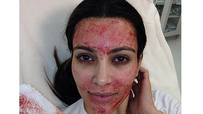 Kim Kardashian tweets pictures of her unusual facial, filmed for her reality TV show.