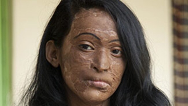 acid throwing Free essay: having your face disfigured and burned in a matter of seconds is not what any woman has in mind as a consequence when they refuse to go on a date.