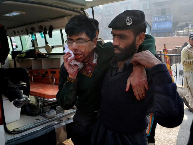 Violence ... The students that survived were left bloody and injured. Picture: AP/Mohammad Sajjad