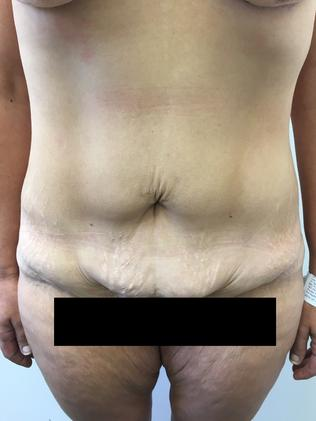 After she lost weight, her skin remained saggy.