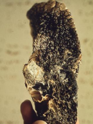 A diseased lung with coal workers pneumoconiosis, or CWP.