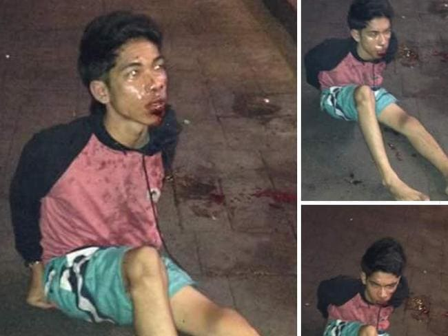 Pictures circulated on Facebook show a bloody Kiki Irfani after he was beaten. Picture: Facebook