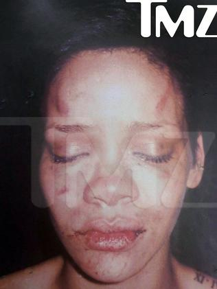 "This undated photo provided by TMZ of Rihanna was according to TMZ, ""taken after Chris Brown allegedly beat her""."