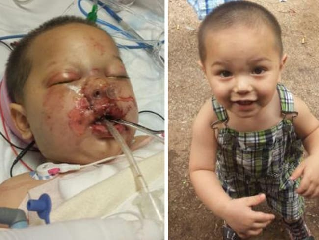 Toddler Bounkham Jr suffered injuries from a flash grenade. Picture: Supplied