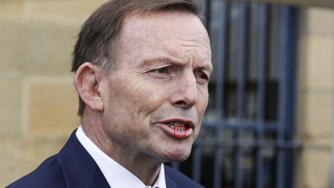 Former Australian prime minister Tony Abbott addresses the media about his alleged headbutting in Hobart. Picture: AAP Image/Jim Rice.
