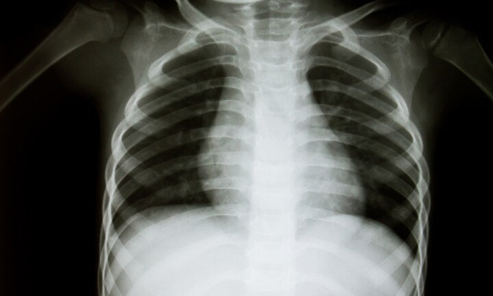 Experts claim doctors are ordering too many unnecessary X-rays for kids