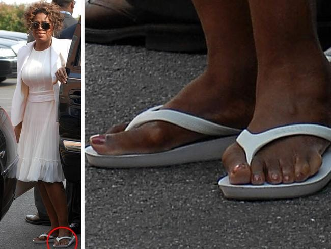 Image result for Oprah Winfrey, sixth toe