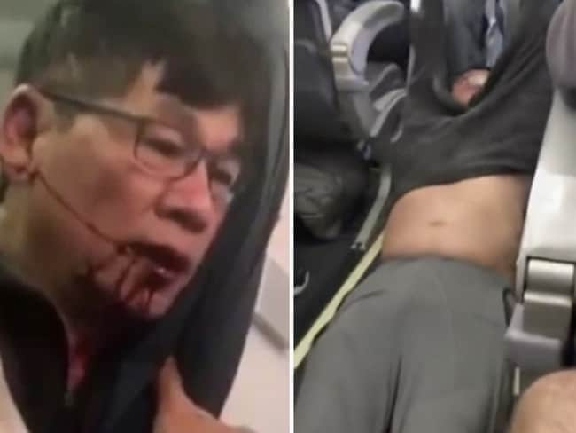 David Dao — United Airlines passenger removed from flight. Picture: AP