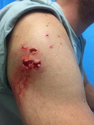 Charlie Fry, doctor from the UK who was mauled by a shark on the central coast Picture: Supplied