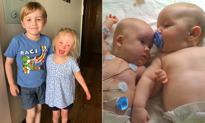 These incredible twins have had each other's backs since birth