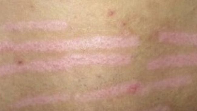 Following the burns the woman was left with scarring and returned to the laser clinic. Picture: Helen Golisano