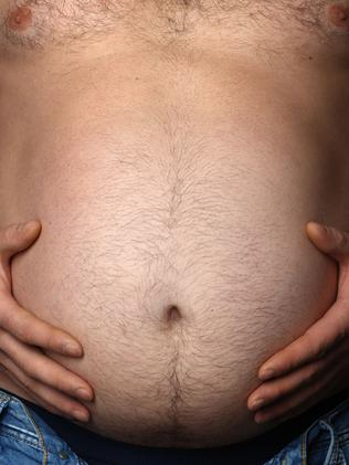 Problems ... Plicate patients are having their obesity surgery reversed or repaired in public hospitals. Picture: Supplied