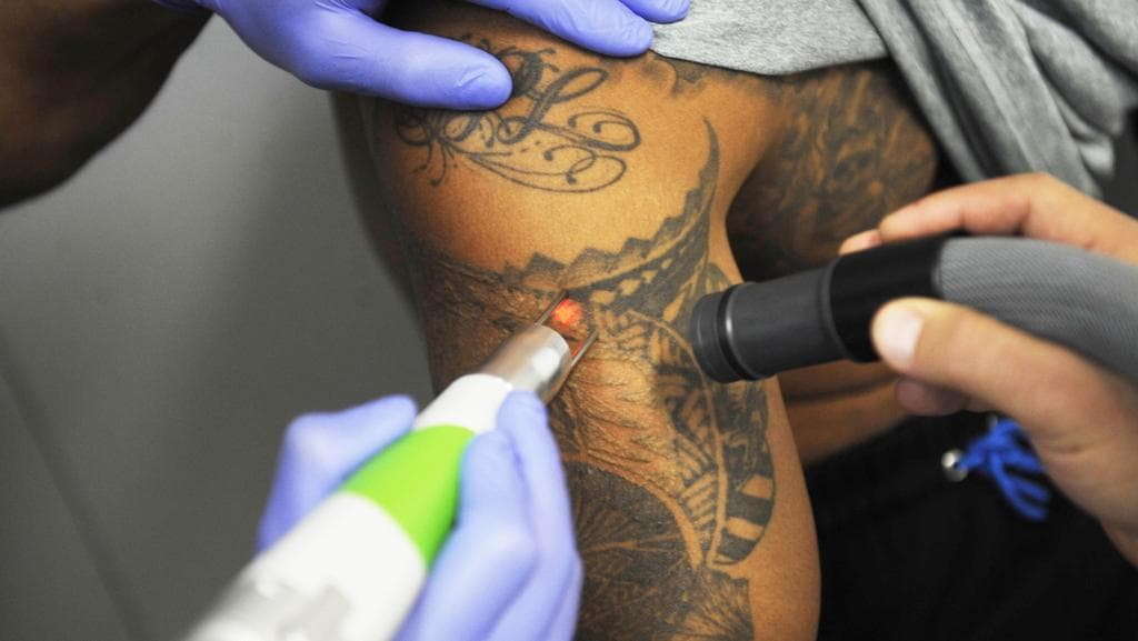 Laser tattoo removal on the rise as stats say one in three for Tattoo removal clinic