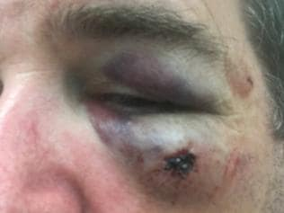 A prison guard who was bashed in an unprovoked attack at Barwon Prison. He was left with fractures in his skull, cheek and eye socket. Supplied .