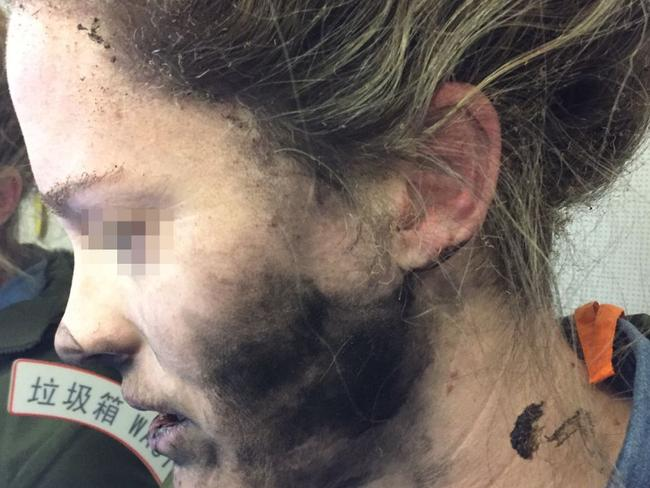 Apple 'not to blame' for headphone burns