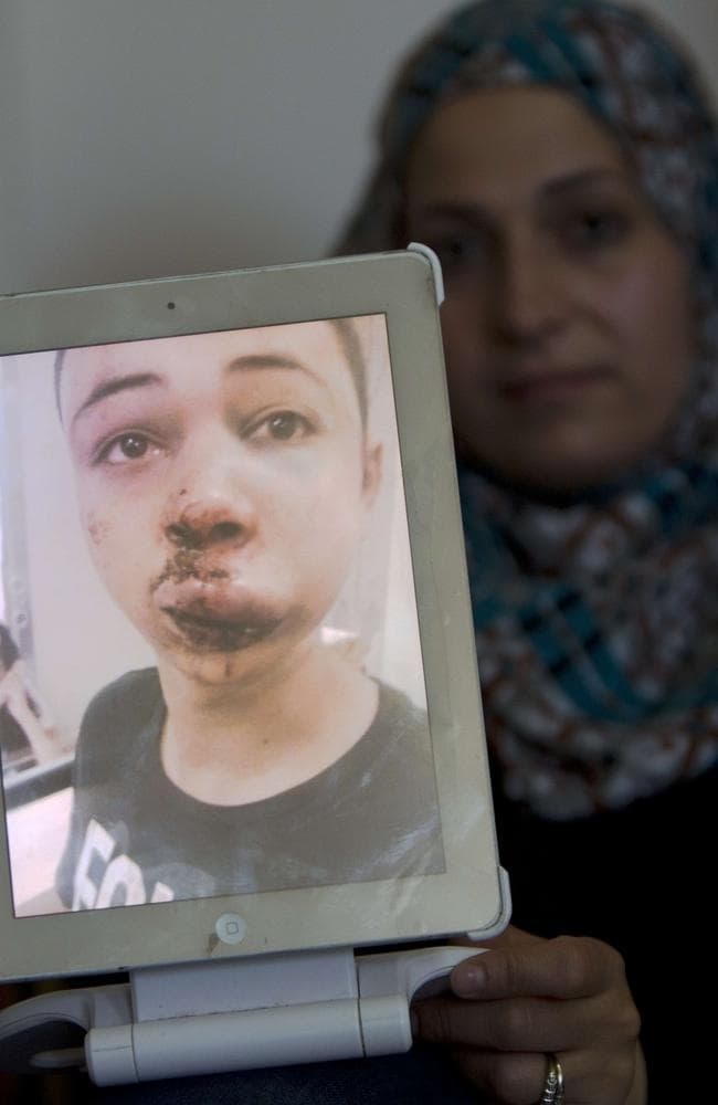 Brutal ... the mother of Tariq Abu Khder, the 15-year-old cousin of the murdered Palestinian youth Mohammed, shows a picture of her son taken at the hospital after the alleged police assault.