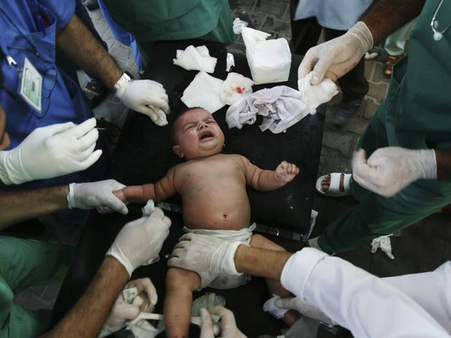 Palestinian medics treat a baby wounded in an missile strike in Rafah, in the southern Gaza Strip. Pic: AP/Eyad Baba.