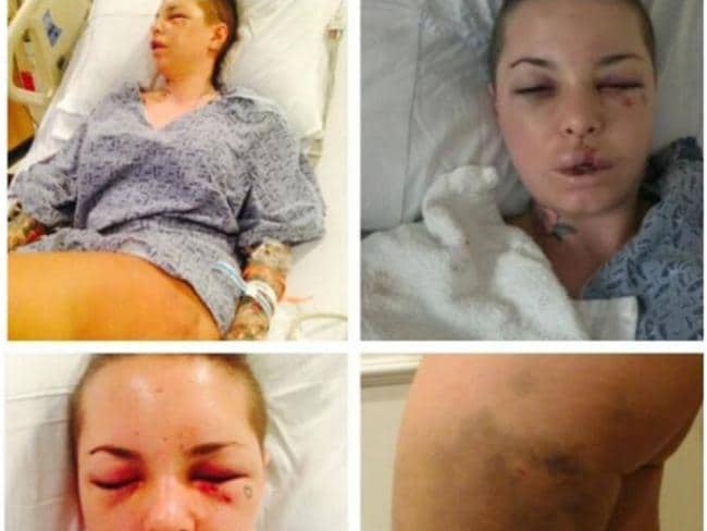 Mackinday sustained numerous broken bones in her face, a fractured eye socket, two missing teeth, cracked ribs and a lacerated liver in the alleged attack.