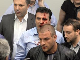 Opposition Social Democrats leader Zoran Zaev bleeds after being injured when supporters of former leading party VMRO-DPMNE entered the parliament following an allegedly unfair vote for a parliamentary speaker in Skopje on April 27, 2017. Macedonia's opposition leader was among at least 10 people injured in parliament on April 27 after protesters stormed the building following an allegedly unfair vote for a parliamentary speaker, witnesses and local media reported. The violence erupted after around 100 protesters supporting the rival VMRO-DPMNE party entered parliament waving Macedonian flags and singing the national anthem. / AFP PHOTO / Stringer