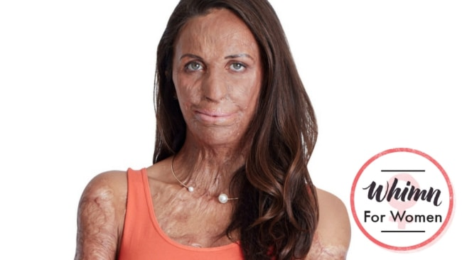 Turia Pitt is not afraid to tell the truth. Image: Supplied.