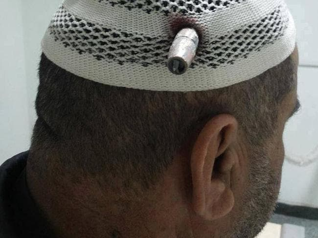 Sheikh Mohammed Obaid Al-Rawi waits for a doctor to remove a bullet lodged in his head.