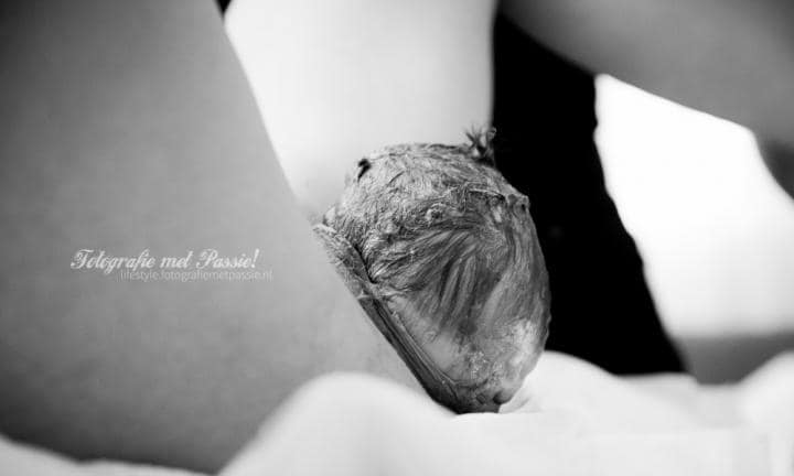 ©_Gerjanne_Immeker_birth_photography_crowning_004