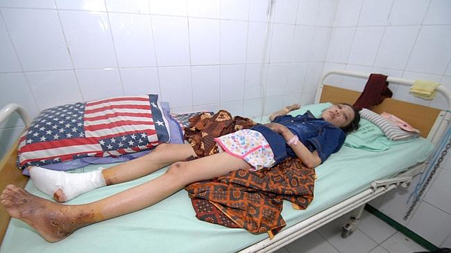 Indonesian Erwiana Sulistyaningsih rests at a hospital. Picture: AFP