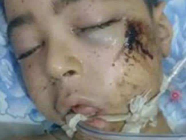 Ali Daqneesh (10) died on August 20, 2016 of injuries sustained in the bombing of his Aleppo apartment block. Picture: Supplied