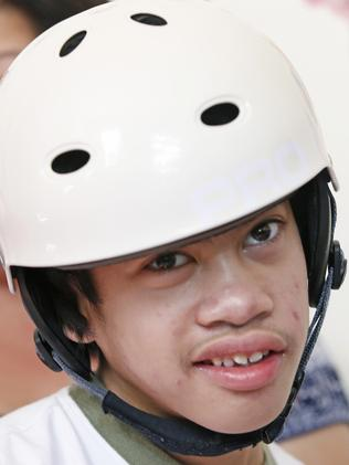 Now aged 12 ... Carl Aguirre was separated from his twin at the head 10 years ago. Picture: AP