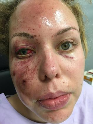Felicia Djamirze shared this photo of her injured face while in hospital.