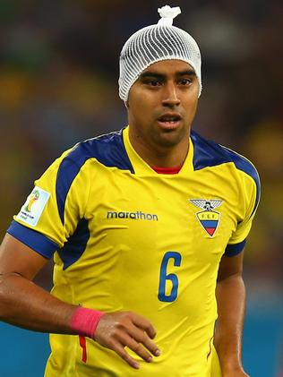 Christian Noboa of Ecuador with the bandage he modelled during the France game.