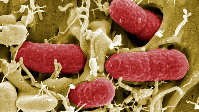 E.Coli found in vegetables has health authorities in Europe on high alert. Picture: AFP