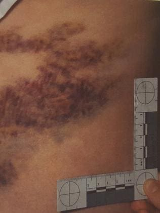 The severe injuries left the victim in hospital for days. Picture: SA Police