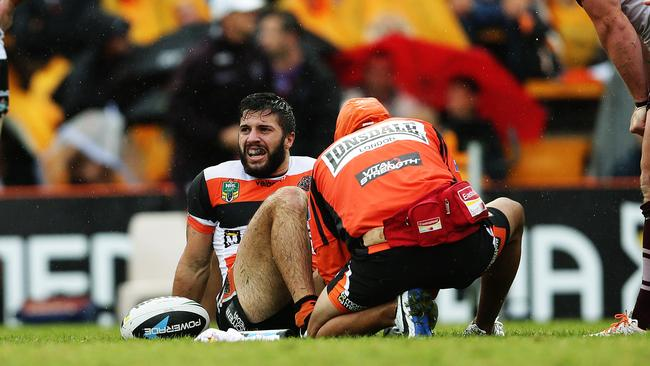 James Tedesco goes down with an injured ankle during the Tigers round five clash against the Sea Eagles.