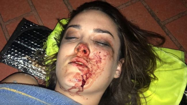 Kim Smith after the attack. Photo: Facebook