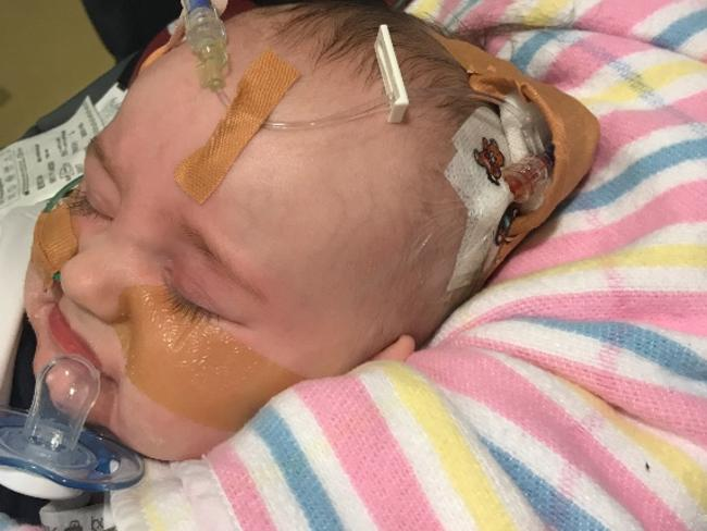 Brock Gilbert has developed swelling on the brain and a blood clot after the four-month-old contracted influenza A.