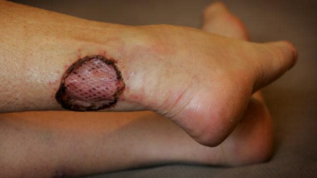 A woman got the Bairnsdale Ulcer on her ankle.