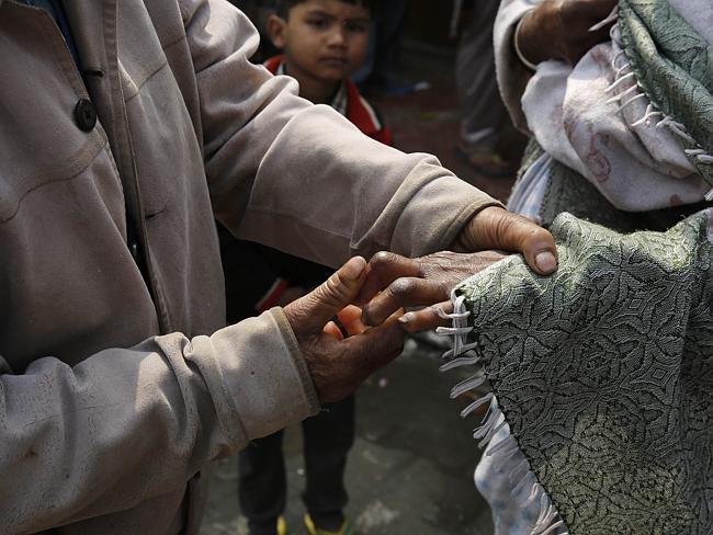 Effects... Leprosy sufferers can lose parts of their fingers to the disease. Picture: Manish Swarup/AP