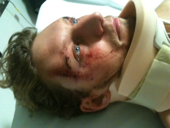 Jonathan Heier was attacked in broad daylight by three men in Melbourne after an internet Gumtree deal went wrong.