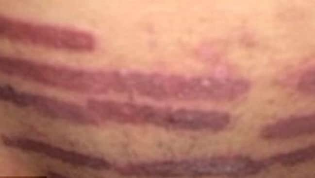 The woman was left with a number of burns on her crotch. Picture: Helen Golisano