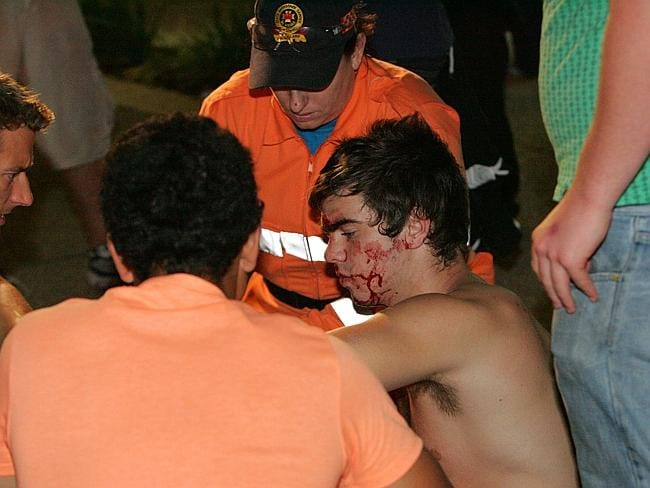 A schoolie is treated by a paramedic and SES volunteers after being assaulted at Surfers Paradise.