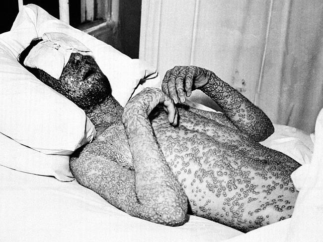A man suffering from smallpox is shown lying in bed, covered in pustules.