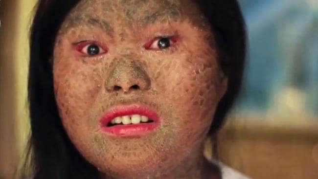 Floraine Nalugon suffers from a skin condition called lamellar ichthyosis. Picture: News Lions/SWNS/Mega