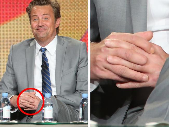 Image result for Matthew Perry, Missing finger