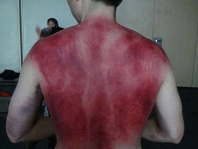 His therapy involves fasting, stretching and then slapping the body to the point of bruising. Picture: Facebook